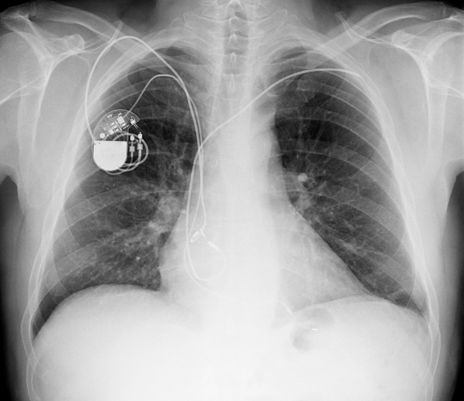 xray of chest with pacemaker