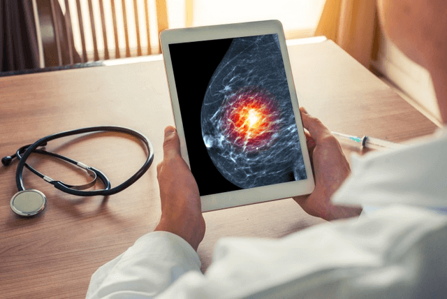 A mammographer looks at at an image during a scan.